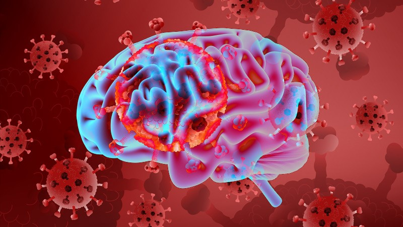 Vascular neurological complications in patients with COVID-19